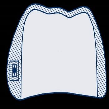 Allineatore ortodontico semitrasparente settoriale con arco integrato