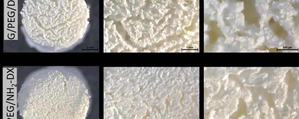 Corpo poroso bioattivo tridimensionale me per la rigenerazione di tessuto osseo e processo per la sua produzione